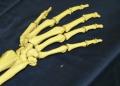 Что необходимо знать об остеоартрите