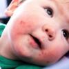 Вирус Коксаки у детей – симптомы, лечение и профилактика