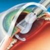 Все преимущества операции факоэмульсификации на катаракте глаза