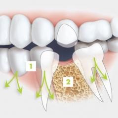 Почему зубы обязательно протезировать